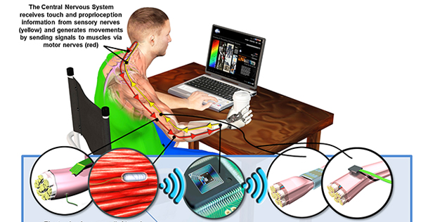 DARPA's Hand Proprioception and Touch Interfaces (HAPTIX) program aims to develop fully implantable, modular and reconfigurable neural-interface systems that would enable intuitive, dexterous control of advanced upper-limb prosthetic devices. In a major s