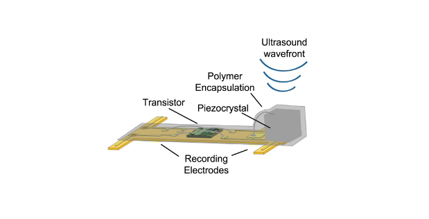 "Implantable ""Neural Dust"" Enables Precise Wireless Recording of Nerve Activity"