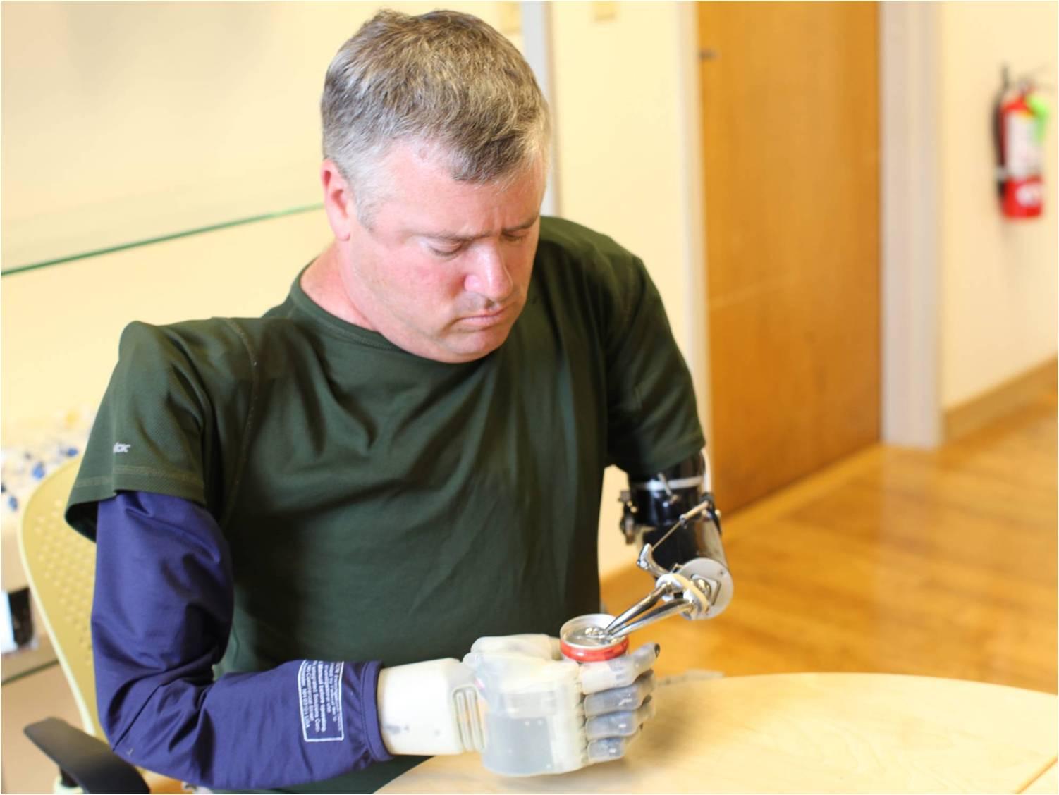 Revolutionizing Prosthetics